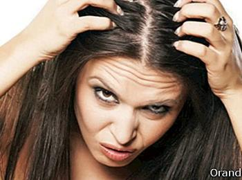 Home Remedies for Dealing With Hair loss